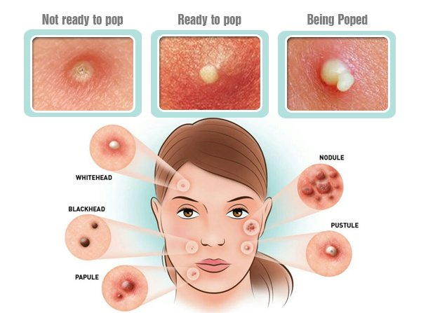 causes and treatments of acne